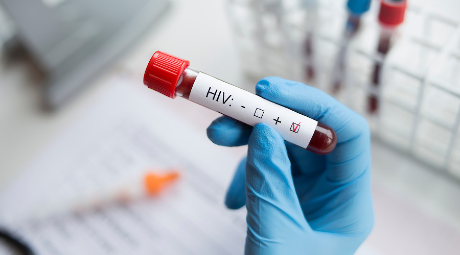 Frontiers in HIV: Sailing in the scientific perspective
